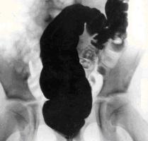 Контрастный рентген