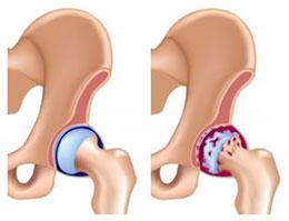 Коксартроз тазобедренного сустава - что это и как лечить.