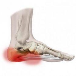 Боли в пятке: симптомы, причины, методы устранения проблемы