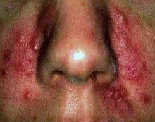 Увеличение носа при демодекозе