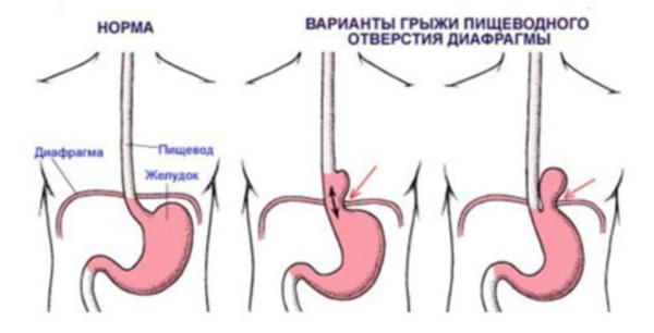 Варианты диафрагмальной грыжи