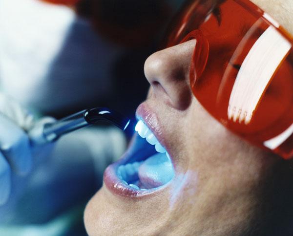 Лазерное удаление зубного камня