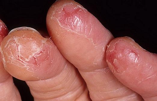Больная кожа на пальцах
