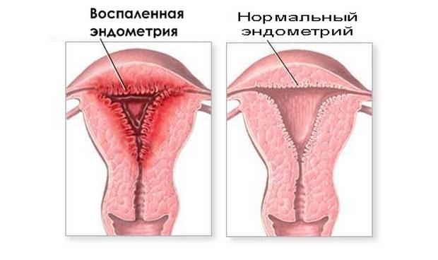 Эндометрия