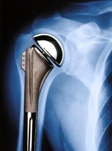 Протез сустава плеча