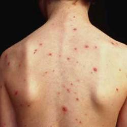 ихтиоловая мазь от аллергии