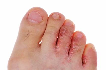 Грибок ногтей средства лак