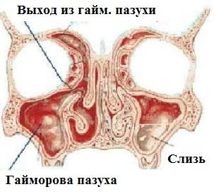 Рисунок гайморовых пазух