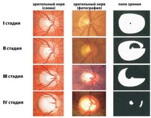 Стадии заболевания глаукомы