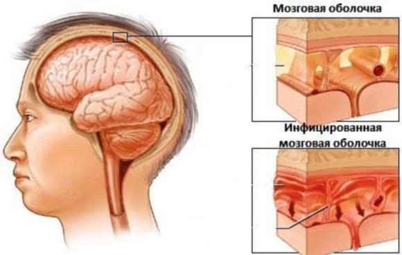 Оболочка мозга