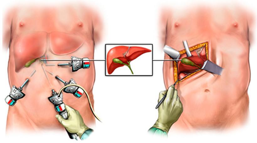 Оперативное лечение холециститов