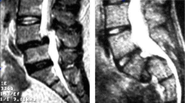 Рентгеновский снимок позвонка