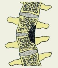 Пораженные туберкулезом позвонки