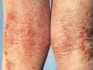 Нейродермит - симптомы и лечение заболевания.