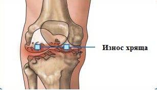 Рисунок костей колена