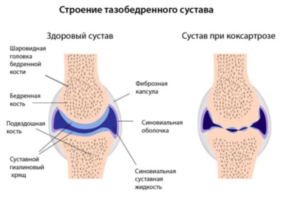 Больной и здоровый сустав