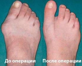 Разница до и после операции