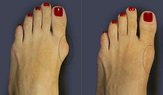 До и после лечения косточки на ногах