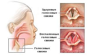 Разница в здоровых и больных голосовых связках