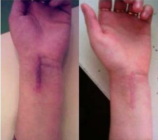 Шлифование шрама руки