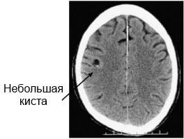 Небольшая киста головного мозга