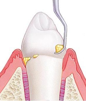Механический способ очистки зуба