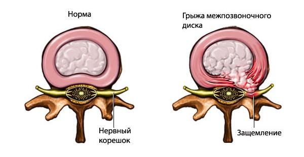 Защемление нерва в пояснице: причины, симптомы и лечение