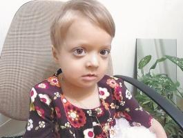 Ребенок с мраморной болезнью.