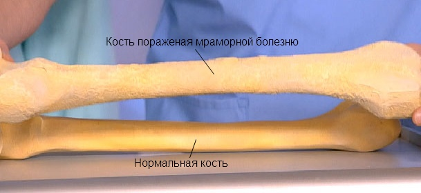 Сравнение нормальной кости с пораженной мраморной болезнью