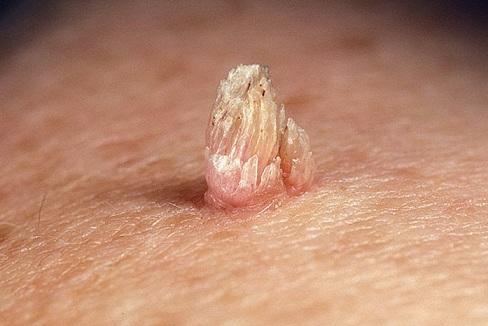 Папиллома на биопсию
