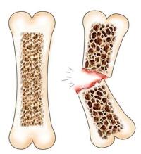 Кости пораженные остеопорозом намного хрупче, так как их плотность меньше.
