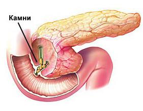 Правильное питание при панкреатите.