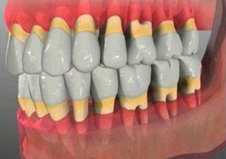 Обнажение зубных шеек