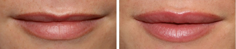 Контурная пластика губ: до и после