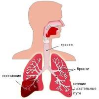 Пневмония и как она выглядит.