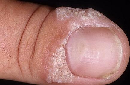 Бородавки на пальце