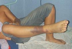 Признаки повреждения