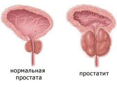 симптомы после лечения простатита