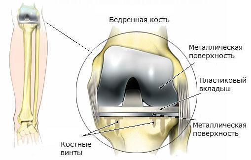 Протез колена