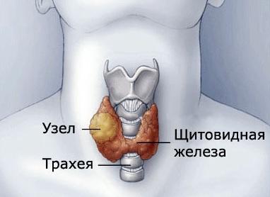 Узел на щитовидной железе