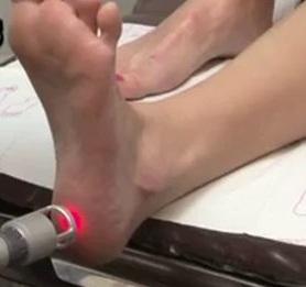 Лечение пяток