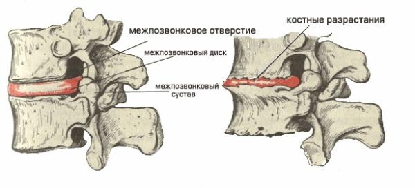 Поврежденные диски при остеохондрозе