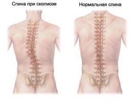 Очень сильно болит спина в области лопаток