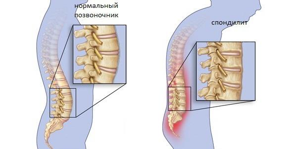 Туберкулёзный спондилит