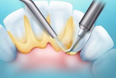Снятие зубного камня ультразвуком