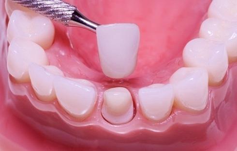Зубы и коронка
