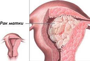Рак матки - симптомы, диагностика, лечение.