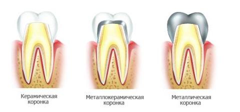 Типы зубных коронок