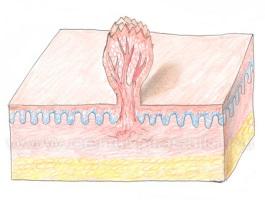 Структура остроконечной кондиломы