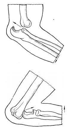 Задний и передний вывихи локтевого сустава